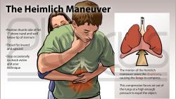 Kỹ thuật cấp cứu Heimlich