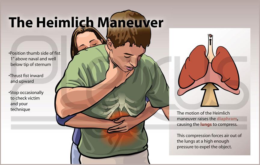 ky-thuat-cap-cuu-heimlich-1